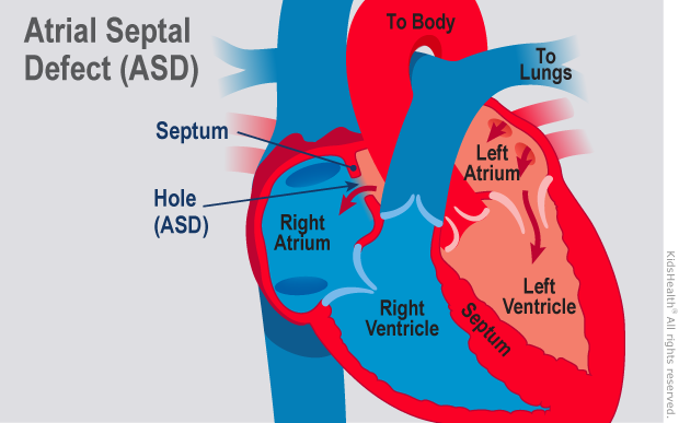 Diagram shows the inside of a heart with an atrial septal defect (A S D) as described in the article text.
