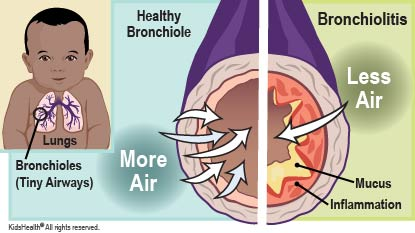Bronchiolitis is an infection of the respiratory tract. Tiny airways called bronchioles swell and fill with mucus, which can make breathing hard.