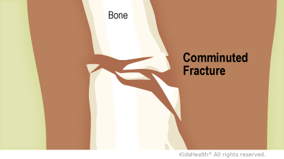 Illustration: Comminuted fracture