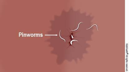 Pinworm la vârsta adultă Zăbovește în jur, Cum arată femelele pinworm