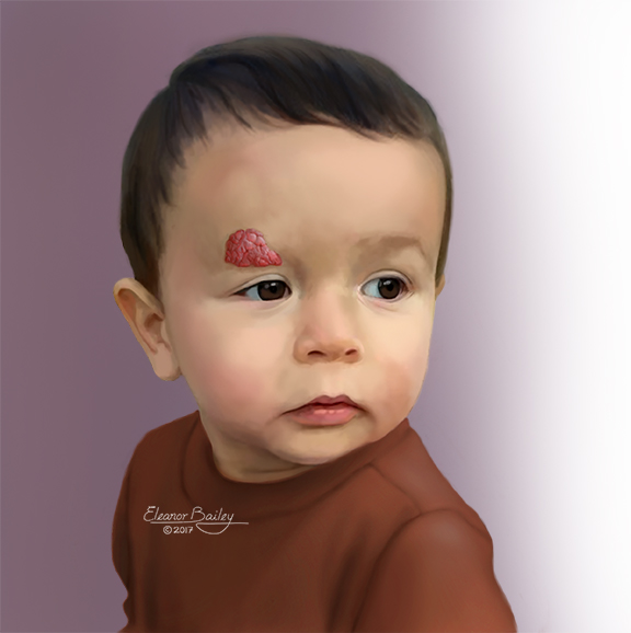 The illustration shows an example of an infantile hemangioma.