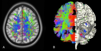 neuroimaging johns hopkins all children s hospital