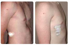 Before/After Photo of Pectus Excavatum Repair